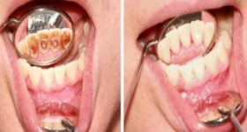 LOŠ ZADAH I KAMENAC JE OD SADA PROŠLOST: Samo sa jednim sastojkom ćete popraviti zdravlje vaših usta, rešiti se kamenca i lošeg zadaha