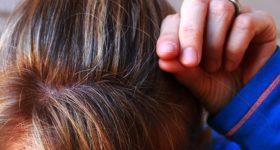 Zbogom sijeda koso: Najjednostavniji recept koji možete napraviti kod kuće!